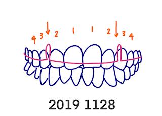 さんがつの歯科矯正を始めます 歯科矯正 19回目の調整 矯正開始前と1年8か月後のビフォーアフターと変形ワイヤー?へ交換