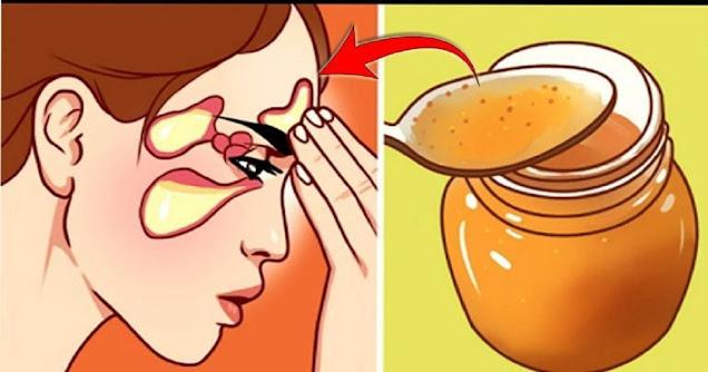 remedes-de-grand-mere-efficaces-pour-traiter-la-sinusite