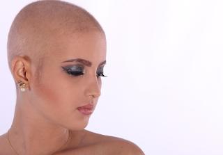 Apakah Calon Wanita Bagus untuk Bedah Transplantasi Rambut?
