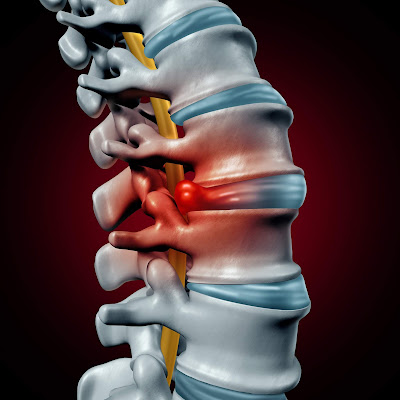 Herniated Disc Injury Car Accident attorney claim florida