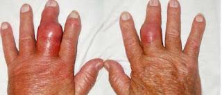 Gichtfinger