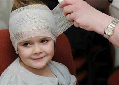 الإسعافات الأولية لإصابات الرأس عند الصغار