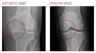 Rheumatoid Arthritis knee joint X -ray