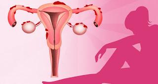 Средства лечения эндометриоза
