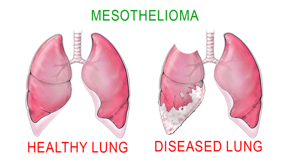 Mesothelioma, also known as malignant mesothelioma is a kind of cancer that affects the layer of tissue that encloses many of our internal organs. Four out of five cases of mesothelioma are as a result of exposure to asbestos, which has been known to contain carcinogens.
