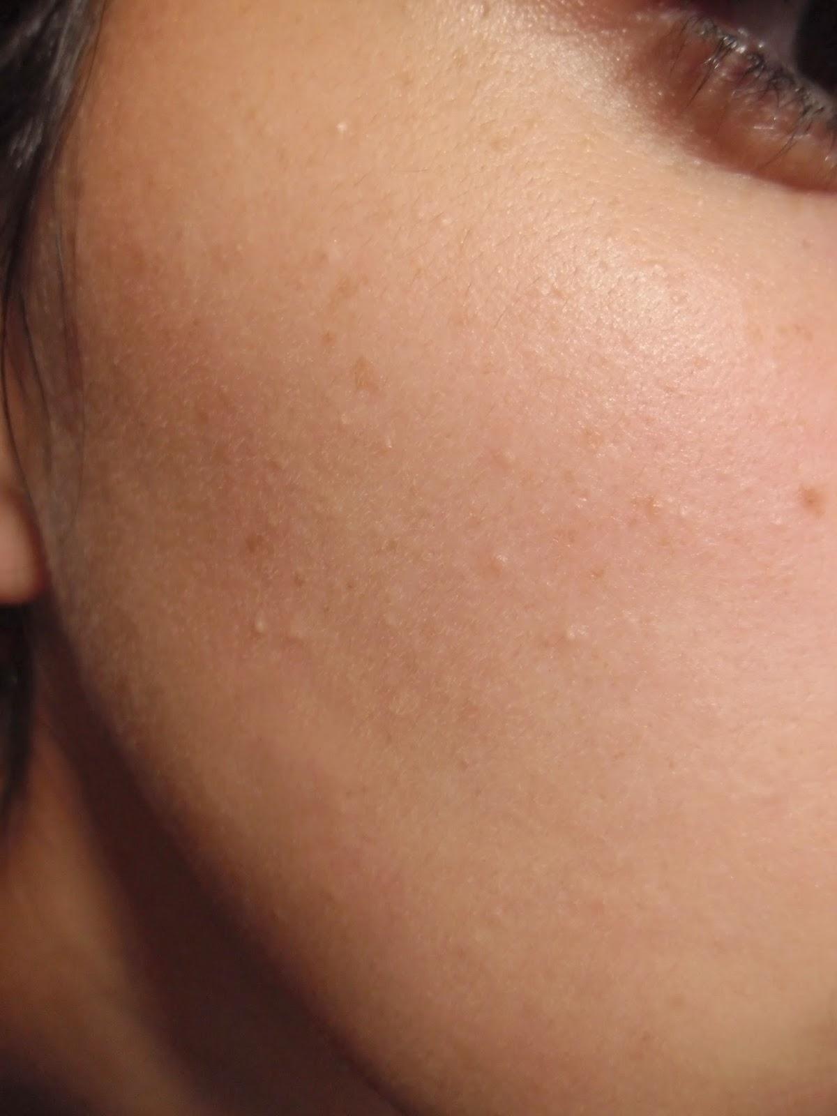 11 Maneras Naturales De Hacer Retirarse Los Puntos Blancos Tengo Puntos Blancos En La Cara