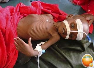 المجاعة فى الصومال----والانفاق فى الاسلام