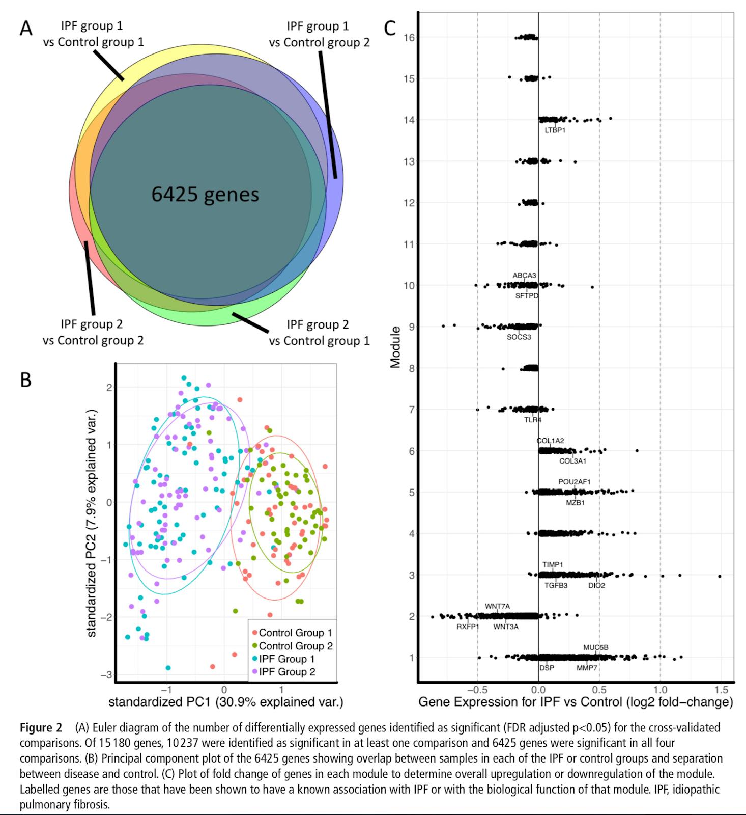 特発性肺線維症:Gene correlatio...