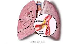 L'embolie pulmonaire ;Physiopathologie,symptômes,Pronostic et traitement