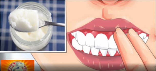 How To Cure Gingivitis With Coconut Oil, Baking Soda And Lemons