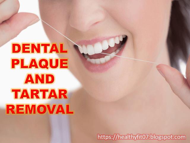 Remove Dental Plaque