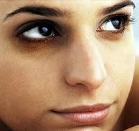 rimedi efficaci per eliminare le occhiaie