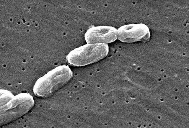 """Sự thật kinh hoàng về loại vi khuẩn """"ăn thịt người"""" đang hoành hành trở lại"""