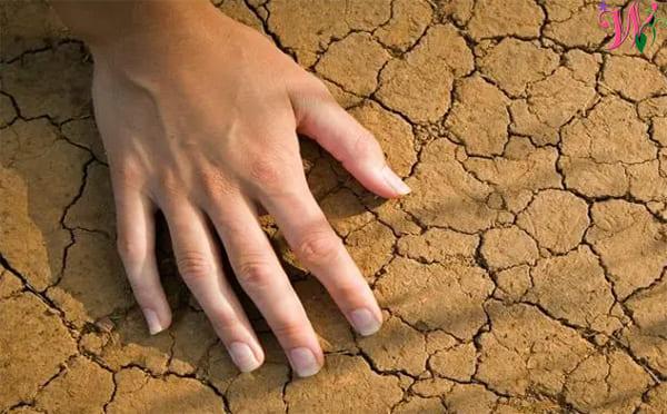 علاج جفاف اليدين