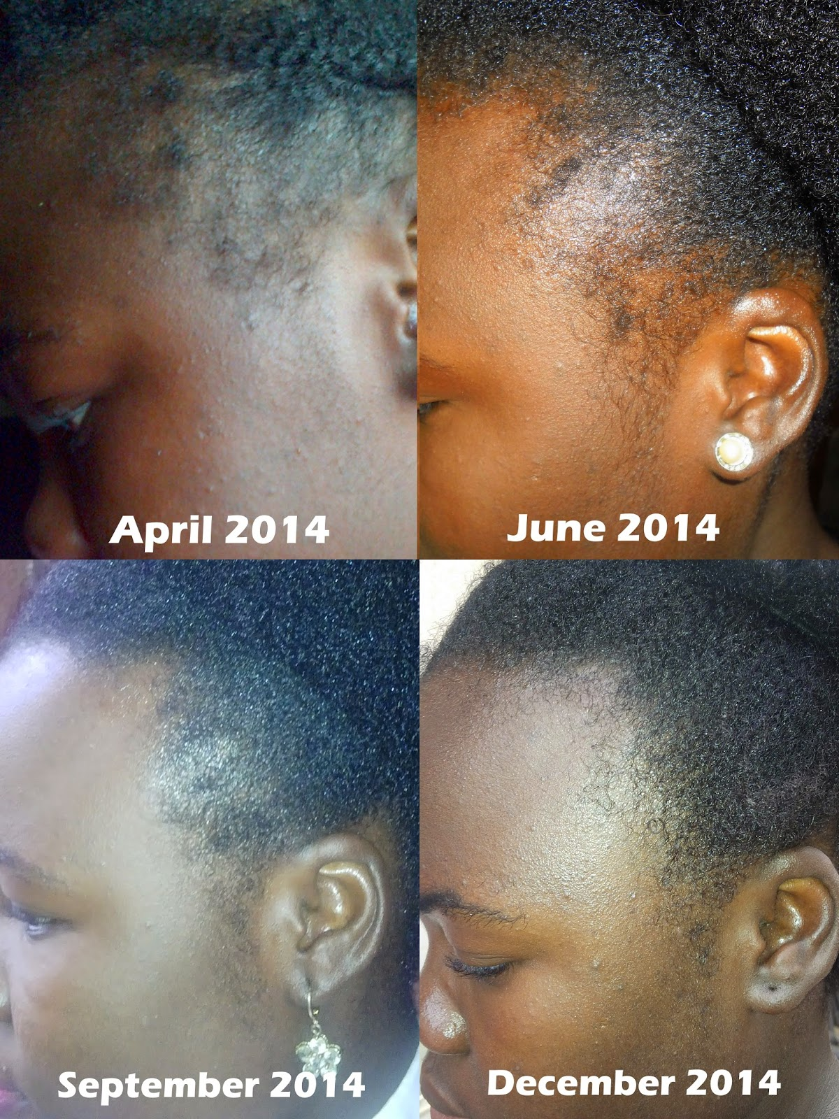 How I Grew My Edges Back Image Source Leeznijis Ng