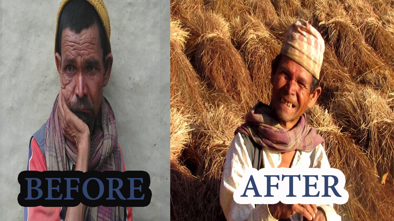 cataract surgery in nepal
