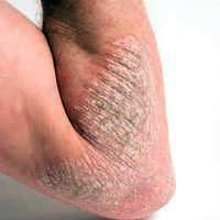 Foto Cara Mengatasi Gatal Alergi lipatan paha