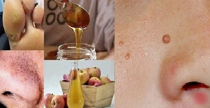 How To Naturally Get Rid Of Warts, Blackheads, Brown Spots..