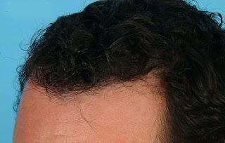 تجربتي مع زراعة الشعر في السعودية