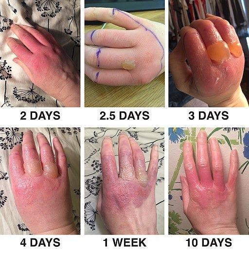 Hiện tượng viêm da tiếp xúc quang hóa (Phytophotodermatitis) khi sử dụng nước chanh và tiếp xúc với ánh sáng mặt trời