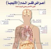 أعراض فقرالدم