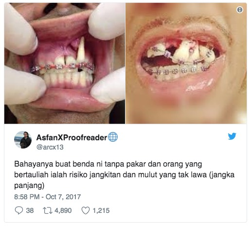 Disabit Bersalah Pasang Pendakap Gigi Tanpa Lesen, Gadis Bayar Denda RM 70,000 Hasil Derma Orang Ramai