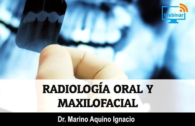 WEBINAR: Radiología Oral y Maxilofacial - Dr. Marino Aquino Ignacio