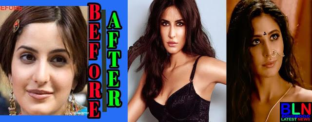 KATRINA KAIF Bollywood Actresses Before and After Plastic Surgery