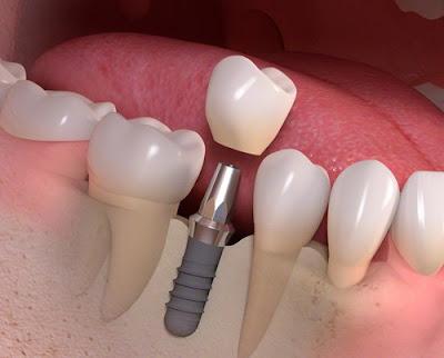 Trồng răng implant có đau có nguy hiểm không ?