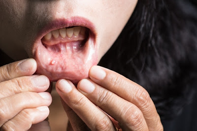 oral cancer treatment bangalore