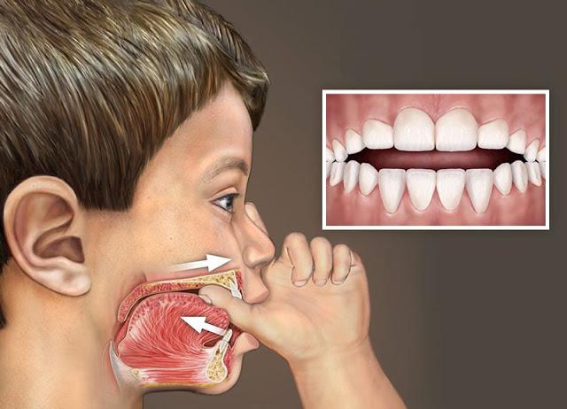 Open Bite: Diagnosis and Treatment