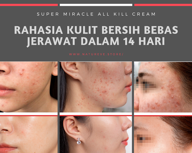Testimoni Some By Mi AHA BHA PHA 14 Days Super Miracle All Kill Cream