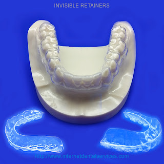 Clear Retainers buy online