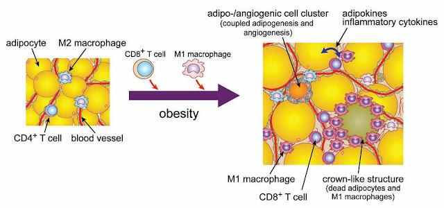 Resultado de imagen de obesidad e inflamación
