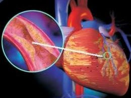 Thuốc điều trị suy mạch vành