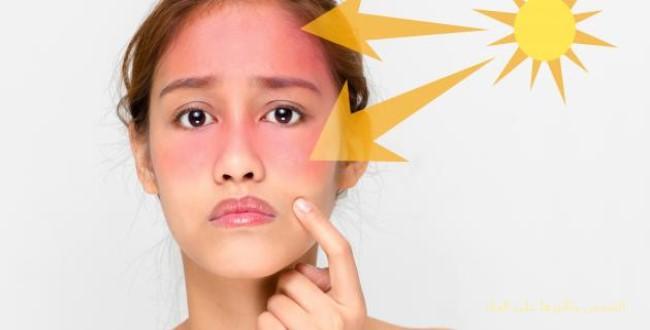 الشمس وتأثيرها على الجلد