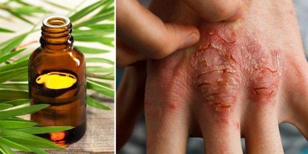 Eczema Cream Recipe – Featuring Lavender & Tea Tree Oil