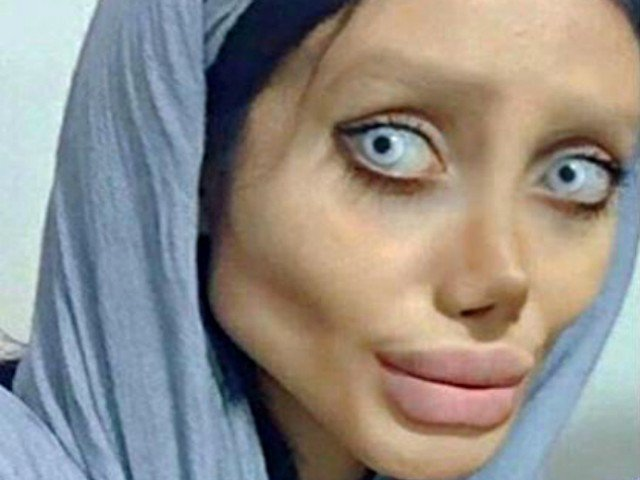 Teen 'undergoes 50 surgeries' in a bid to look like her idol Angelina Jolie… but is branded a 'zombie' instead