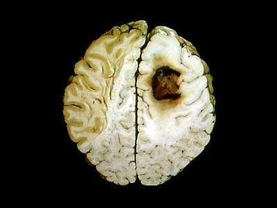 cara mencegah kanker otak