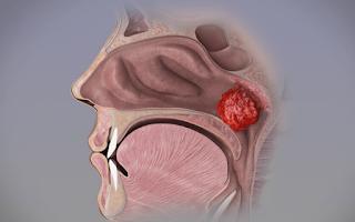 Adenoids Symptoms And Treatment