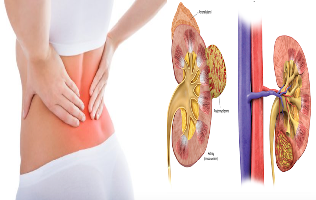 Dangerous Early Warning Signs Of Kidney Failure Most People Tend Ignore!