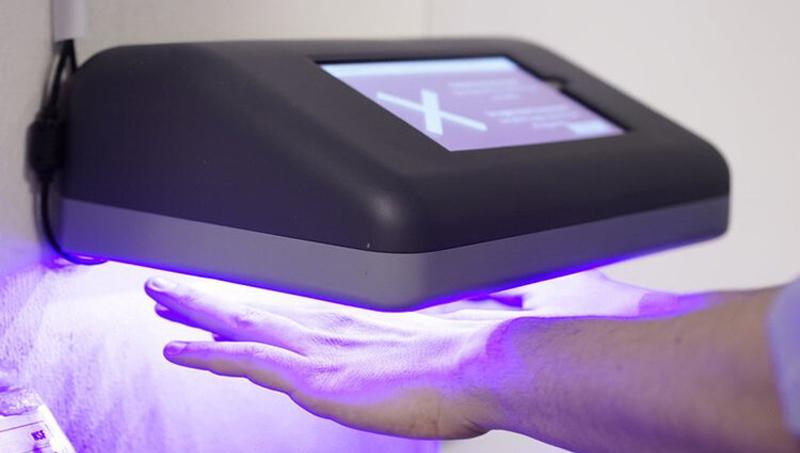 медицинский сканер для рук  | Лучшие изобретения 2019 на Стартап Ньюс