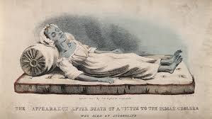 What is Cholera | Cholera Symptoms | What causes Cholera