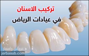 أسعار تركيب الأسنان في الرياض
