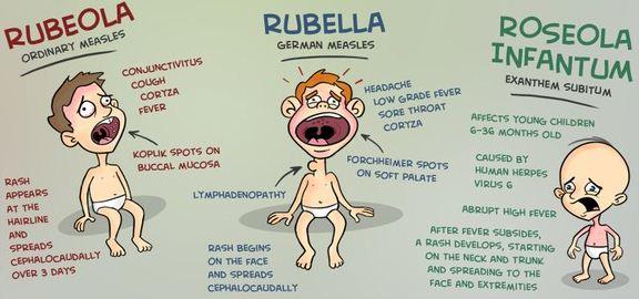 Rubella, (Pengertian, Rubella dan Kehamilan, Gejala Gejala Rubella, Metode Penangan Rubella)