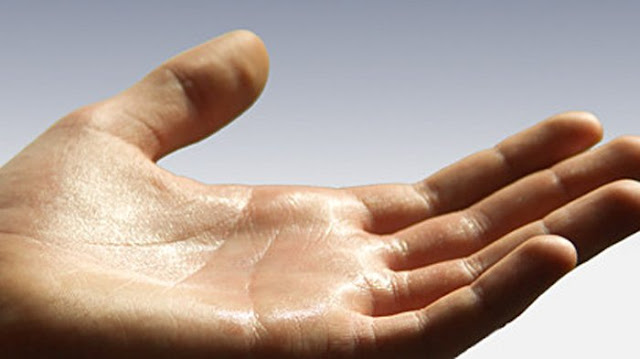 Pengobatan Penyakit Hiperhidrosis yaitu telapak tangan dan kaki selalu basah