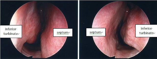Dr Gordon Soo, 蘇明順醫生: Blocked nose (nasal obstruction ...
