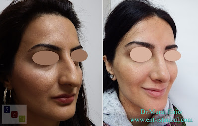 Nose Job in Istanbul Rhinoplasty in Turkey