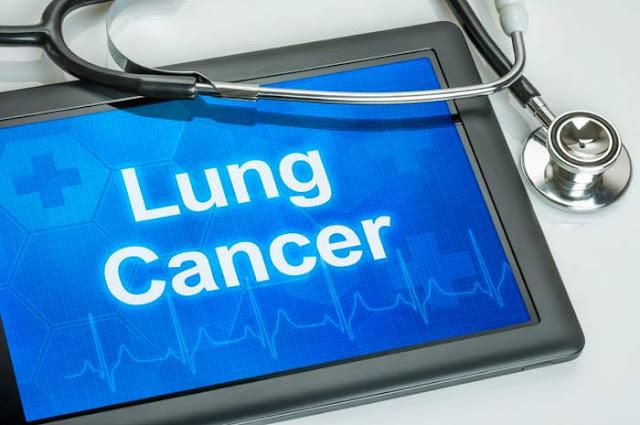 Lung Cancer - Symptoms & Trеаtmеntѕ