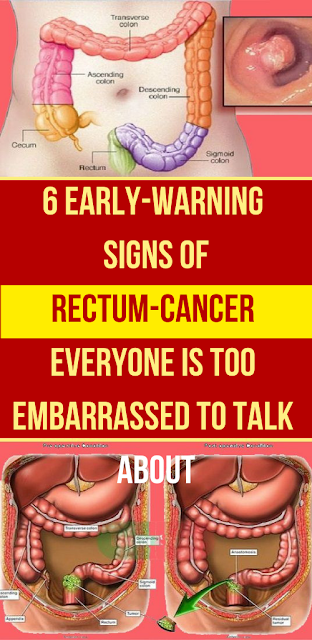 6 Unusual Signs Of Anal Cancer You Shouldn't Ignore